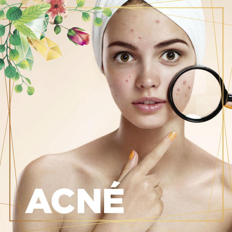 meb-acne