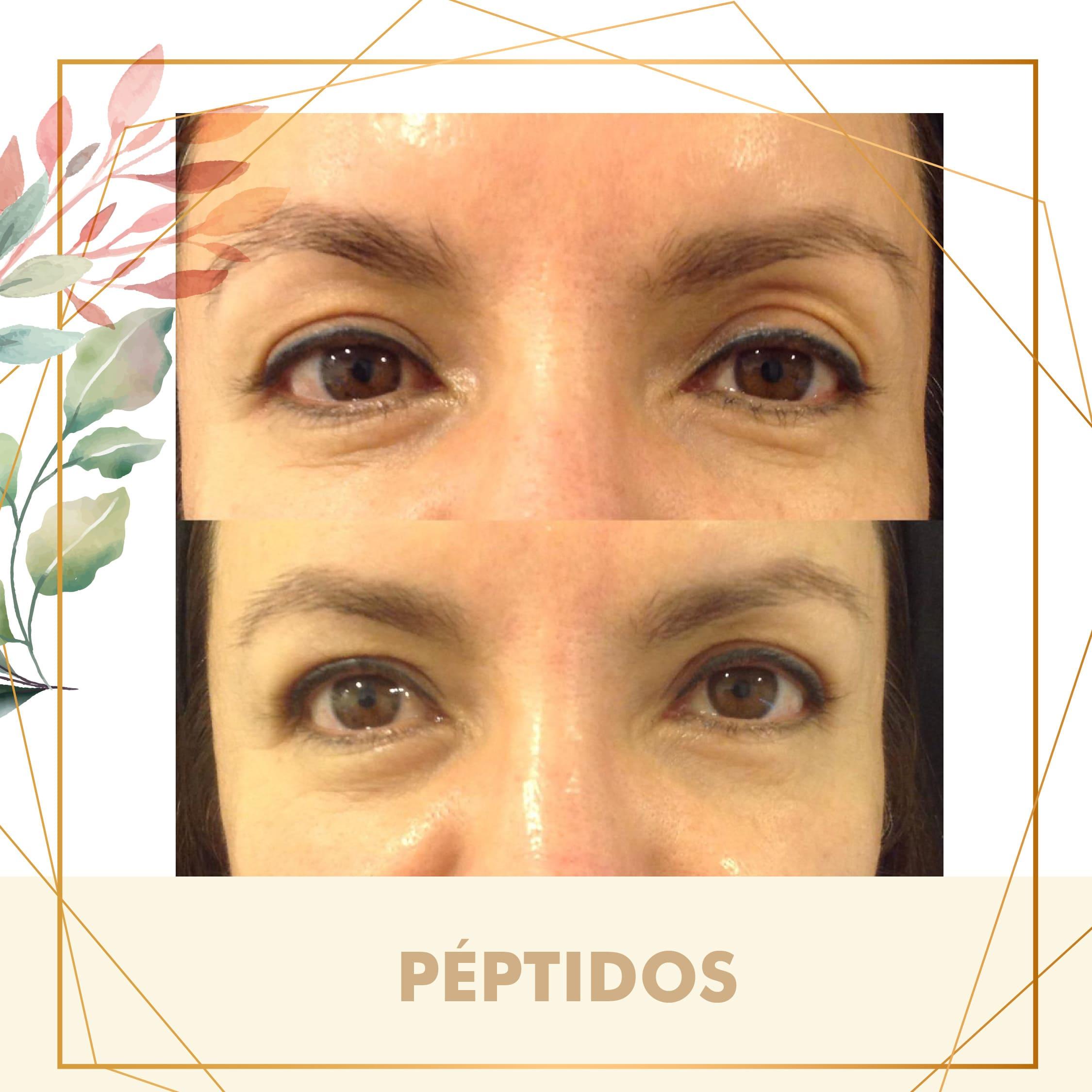 PEPTIDOS-01